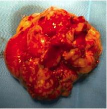 tumor-meningioma-maligna